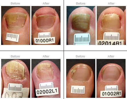 Lubbock Laser Treatment for Fungal Toenails - George C. Bakatsas, DPM